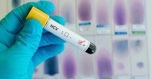Лечение Гепатита в Италии